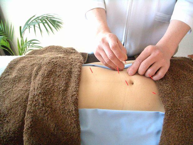 腹部の鍼灸治療